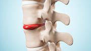 Лечение грыж без операции